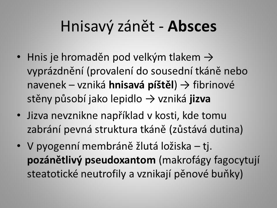 Hnisavý zánět - Absces Hnis je hromaděn pod velkým tlakem → vyprázdnění (provalení do sousední tkáně nebo navenek – vzniká hnisavá píštěl) → fibrinové