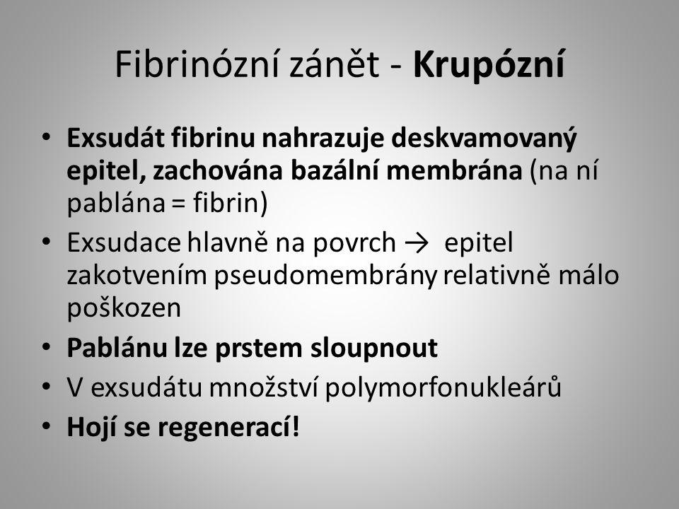 Fibrinózní zánět - Krupózní Exsudát fibrinu nahrazuje deskvamovaný epitel, zachována bazální membrána (na ní pablána = fibrin) Exsudace hlavně na povr