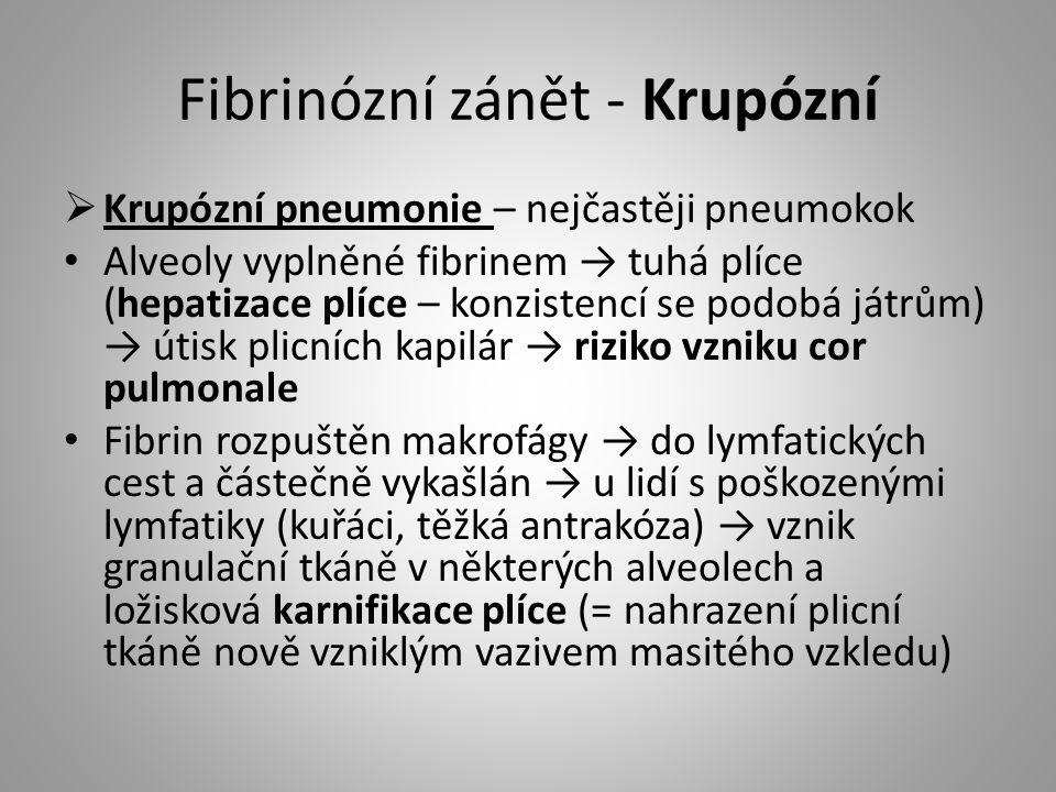 Fibrinózní zánět - Krupózní  Krupózní pneumonie – nejčastěji pneumokok Alveoly vyplněné fibrinem → tuhá plíce (hepatizace plíce – konzistencí se podo