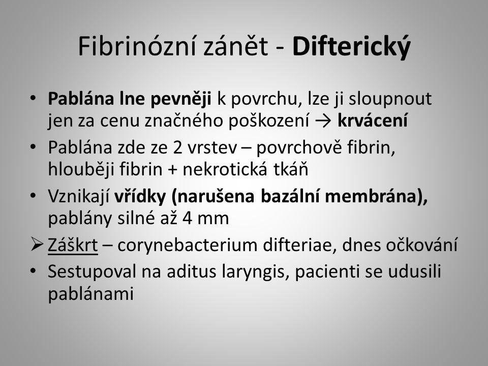 Fibrinózní zánět - Difterický Pablána lne pevněji k povrchu, lze ji sloupnout jen za cenu značného poškození → krvácení Pablána zde ze 2 vrstev – povr