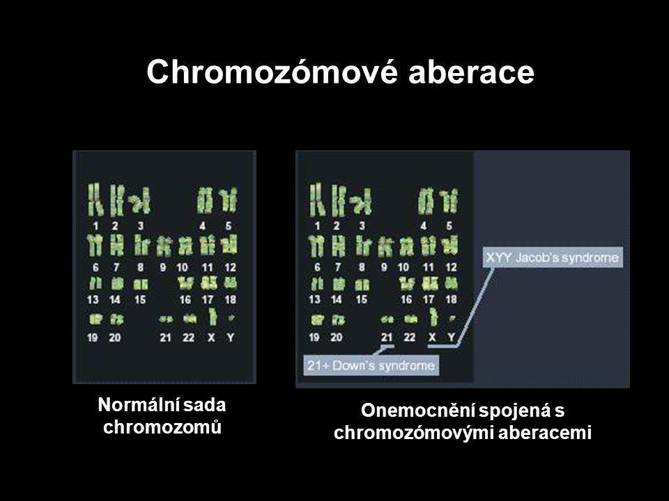 Genové mutace Bodové mutace - záměna jedné nebo malého počtu bází (substituce, inserce a delece) Transpozice - změna polohy celého genu Chromozomové aberace Numerické - změna v počtu chromozomů Strukturní - změna ve struktuře chromozomů Genové mutace Normální sada chromozomů Onemocnění spojená s chromozómovými aberacemi Chromozómové aberace