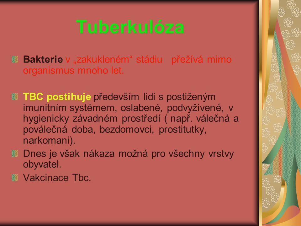 """Tuberkulóza Bakterie v """"zakukleném"""" stádiu přežívá mimo organismus mnoho let. TBC postihuje především lidi s postiženým imunitním systémem, oslabené,"""