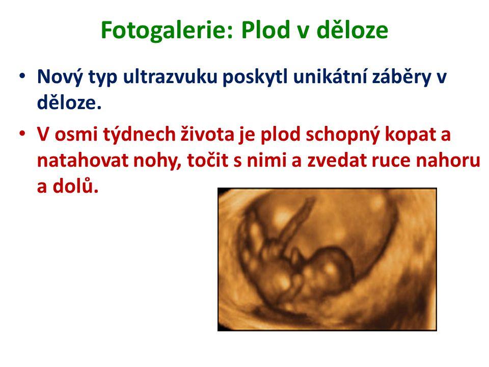 Fotogalerie: Plod v děloze Nový typ ultrazvuku poskytl unikátní záběry v děloze. V osmi týdnech života je plod schopný kopat a natahovat nohy, točit s