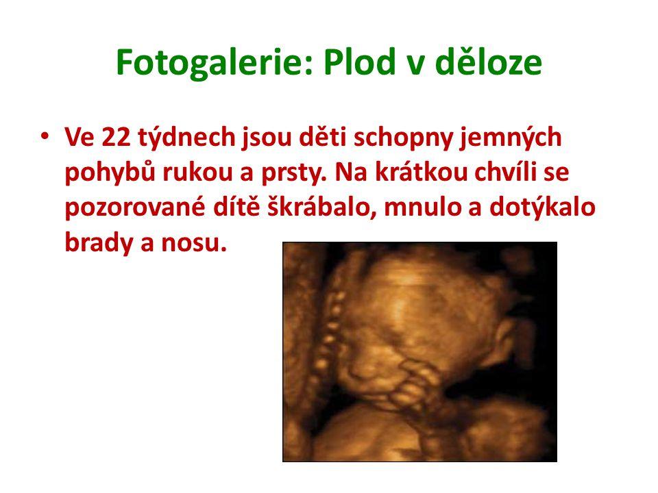 Fotogalerie: Plod v děloze Ve 22 týdnech jsou děti schopny jemných pohybů rukou a prsty. Na krátkou chvíli se pozorované dítě škrábalo, mnulo a dotýka