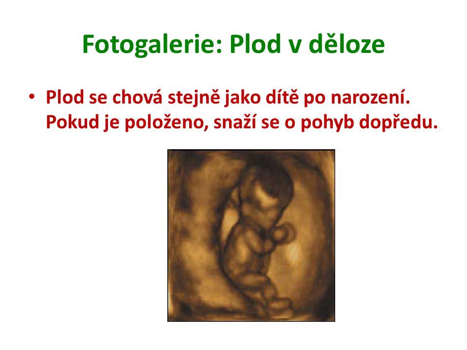 Fotogalerie: Plod v děloze Plod se chová stejně jako dítě po narození. Pokud je položeno, snaží se o pohyb dopředu.