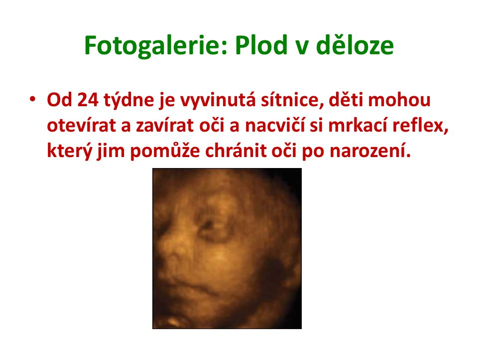 Fotogalerie: Plod v děloze Od 24 týdne je vyvinutá sítnice, děti mohou otevírat a zavírat oči a nacvičí si mrkací reflex, který jim pomůže chránit oči