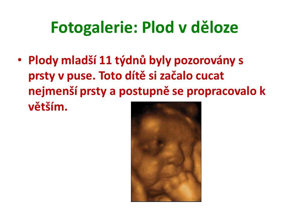Fotogalerie: Plod v děloze Plody mladší 11 týdnů byly pozorovány s prsty v puse. Toto dítě si začalo cucat nejmenší prsty a postupně se propracovalo k
