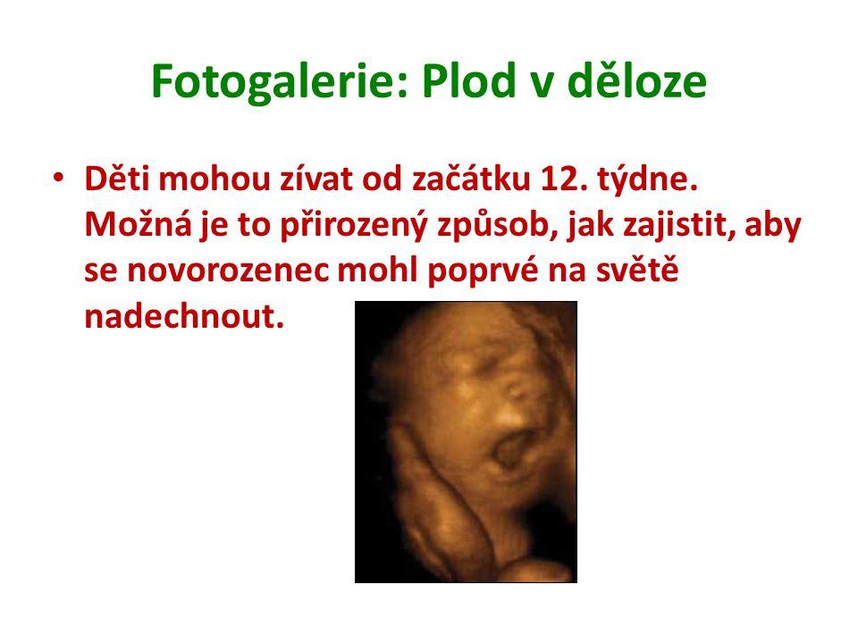 Fotogalerie: Plod v děloze Děti mohou zívat od začátku 12. týdne. Možná je to přirozený způsob, jak zajistit, aby se novorozenec mohl poprvé na světě