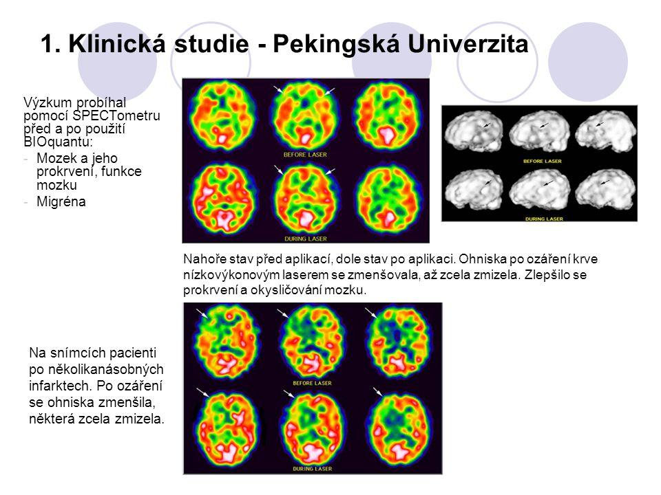 1. Klinická studie - Pekingská Univerzita Výzkum probíhal pomocí SPECTometru před a po použití BIOquantu: - Mozek a jeho prokrvení, funkce mozku - Mig