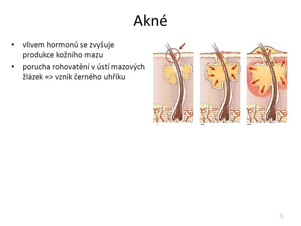 Akné vlivem hormonů se zvyšuje produkce kožního mazu porucha rohovatění v ústí mazových žlázek => vznik černého uhříku 5