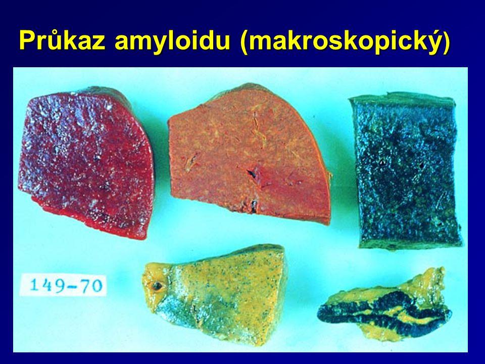 Průkaz amyloidu (makroskopický )