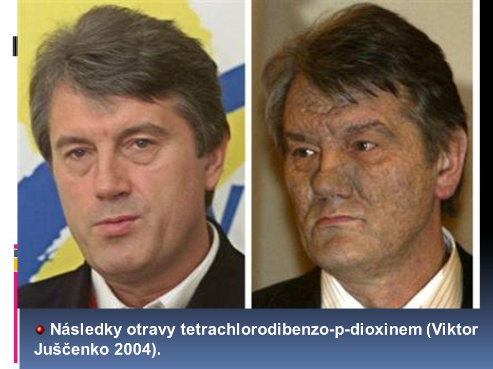 Následky otravy tetrachlorodibenzo-p-dioxinem (Viktor Juščenko 2004).