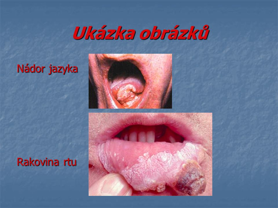 Ukázka obrázků Nádor jazyka Rakovina rtu