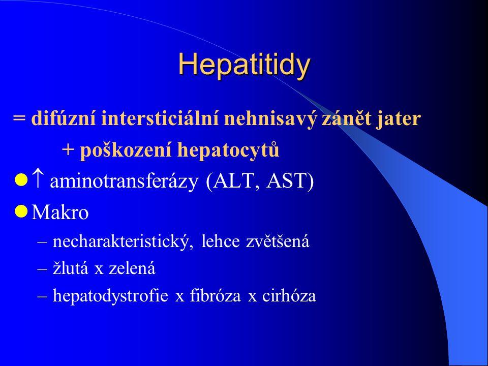 Hepatitidy = difúzní intersticiální nehnisavý zánět jater + poškození hepatocytů  aminotransferázy (ALT, AST) Makro –necharakteristický, lehce zvětše