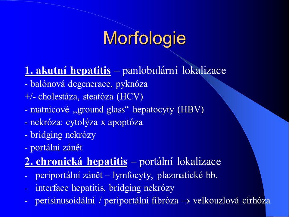 """Morfologie 1. akutní hepatitis – panlobulární lokalizace - balónová degenerace, pyknóza +/- cholestáza, steatóza (HCV) - matnicové """"ground glass"""" hepa"""