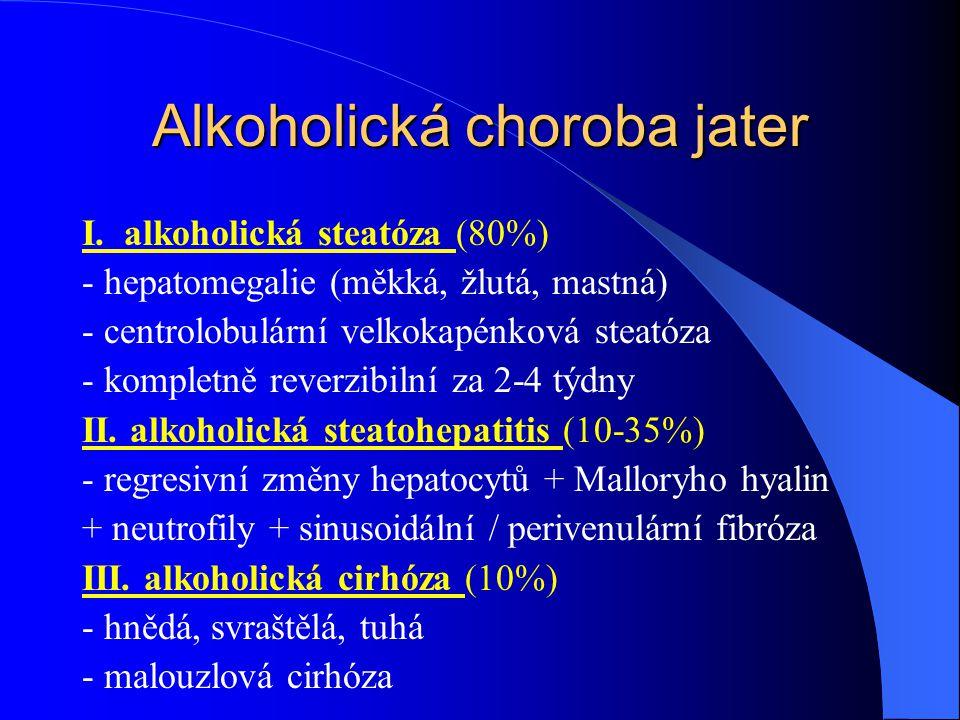 Alkoholická choroba jater I. alkoholická steatóza (80%) - hepatomegalie (měkká, žlutá, mastná) - centrolobulární velkokapénková steatóza - kompletně r