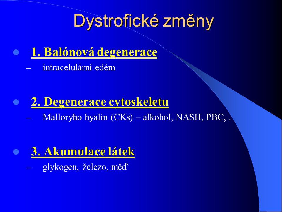 Cirhóza = ireverzibilní uzlovitá přestavba celých jater - smrt hepatocytů + nodulární regenerace + přemosťující vazivová septa velikost: malouzlová ( 3 mm) etiologie: 1.
