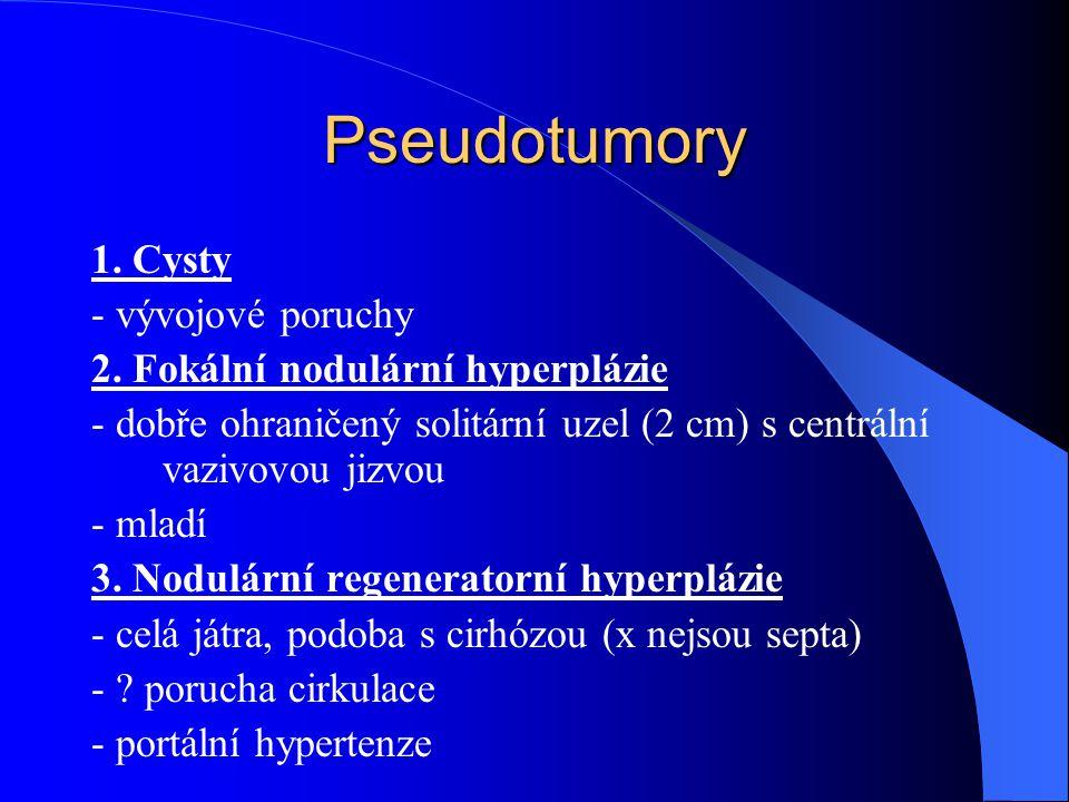 Pseudotumory 1. Cysty - vývojové poruchy 2. Fokální nodulární hyperplázie - dobře ohraničený solitární uzel (2 cm) s centrální vazivovou jizvou - mlad