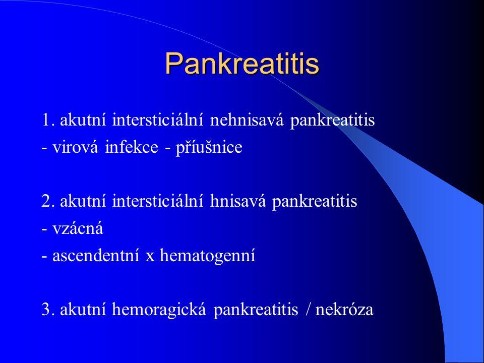 Pankreatitis 1. akutní intersticiální nehnisavá pankreatitis - virová infekce - příušnice 2. akutní intersticiální hnisavá pankreatitis - vzácná - asc
