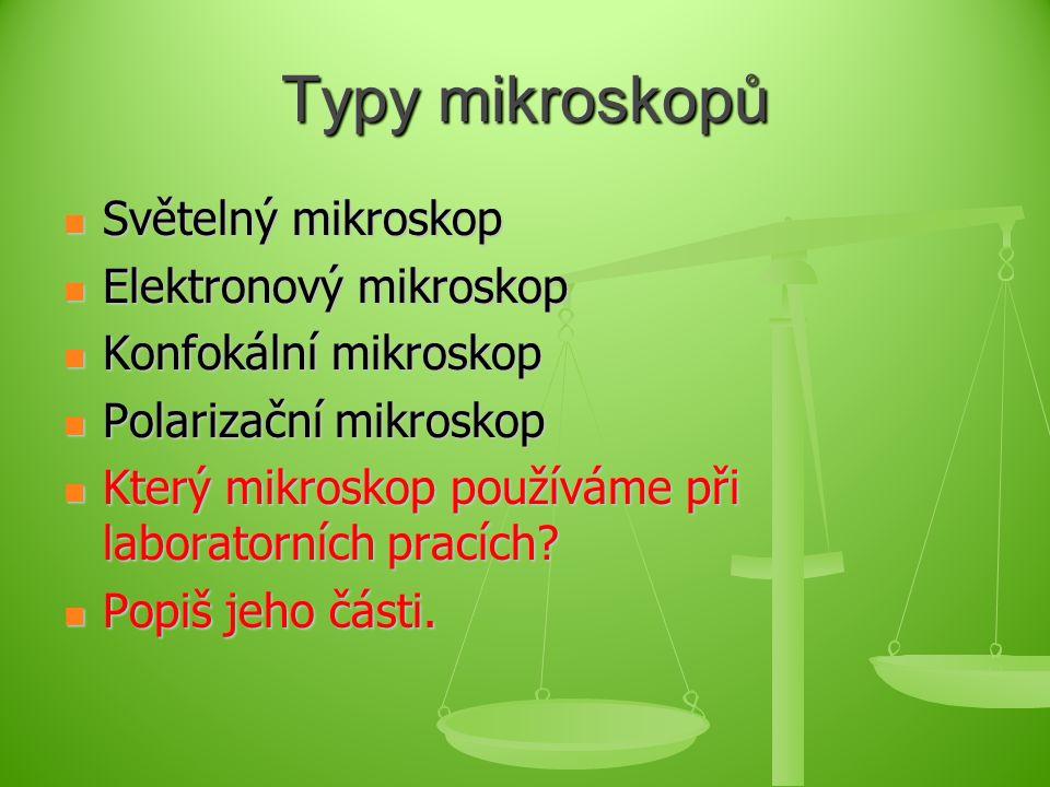 Typy mikroskopů Světelný mikroskop Světelný mikroskop Elektronový mikroskop Elektronový mikroskop Konfokální mikroskop Konfokální mikroskop Polarizační mikroskop Polarizační mikroskop Který mikroskop používáme při laboratorních pracích.