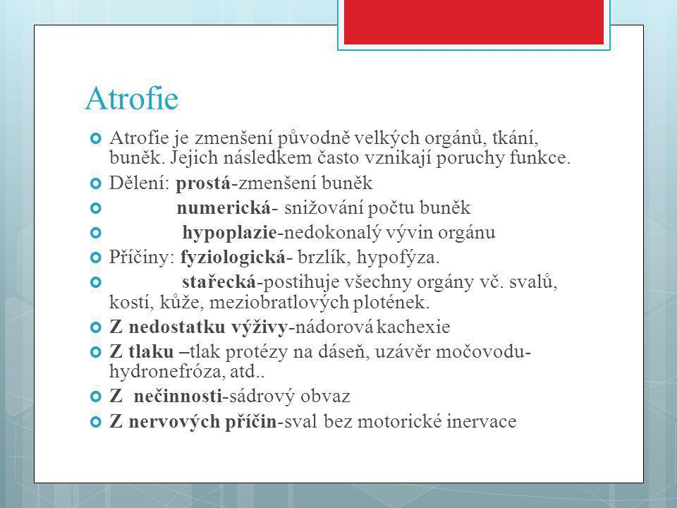 Atrofie  Atrofie je zmenšení původně velkých orgánů, tkání, buněk.