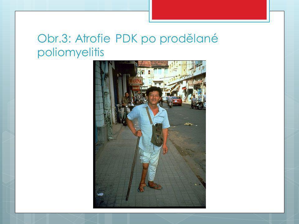 Obr.3: Atrofie PDK po prodělané poliomyelitis