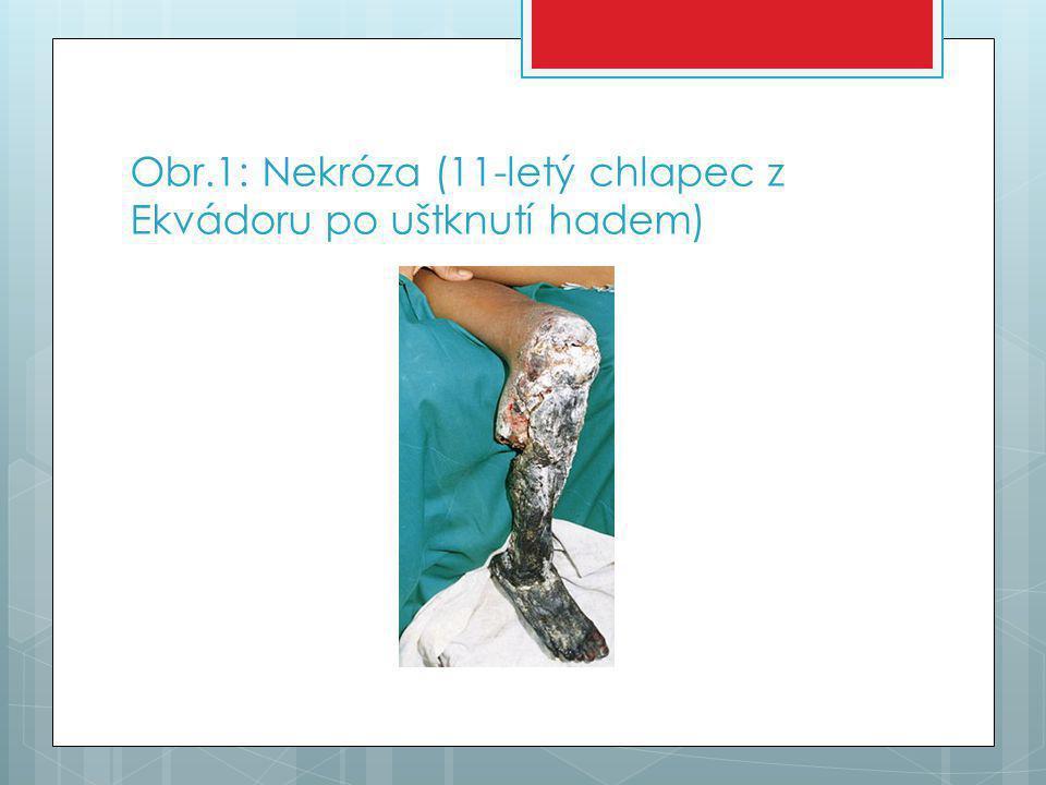 Obr.1: Nekróza (11-letý chlapec z Ekvádoru po uštknutí hadem)