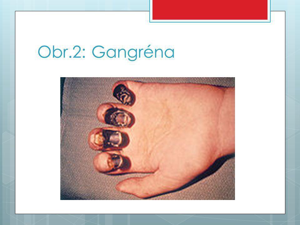 Obr.2: Gangréna
