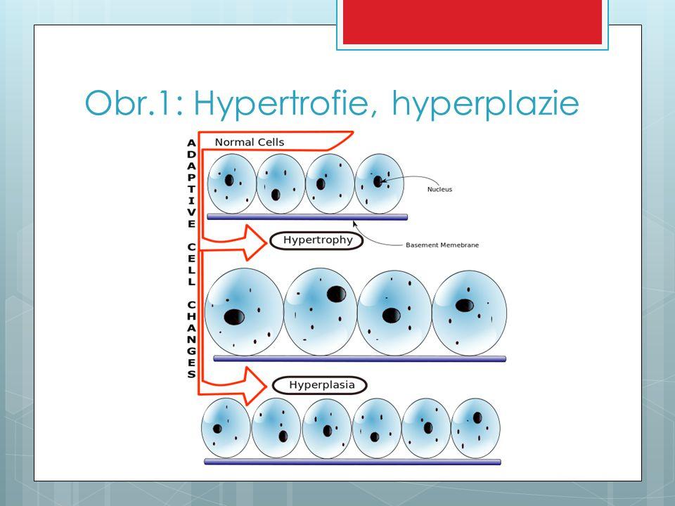 Metaplazie  = přeměna jedné tkáně v jinou  přímá metaplazie – osifikace vazivové tkáně v jizvě  v dutině ústní to mohou být i leukoplakie ( epitel se mění na rohovějící)  nepřímá metaplazie – na místo zaniklého epitelu přerůstá z okolí epitel jiného druhu  př.