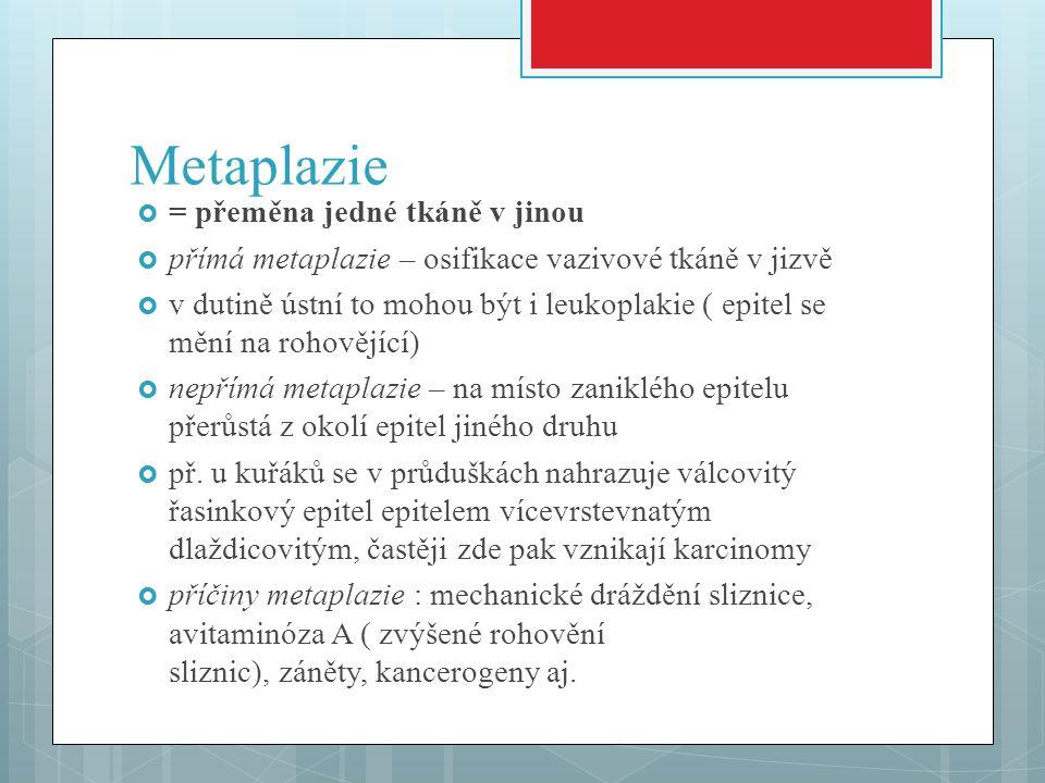 Metaplazie  = přeměna jedné tkáně v jinou  přímá metaplazie – osifikace vazivové tkáně v jizvě  v dutině ústní to mohou být i leukoplakie ( epitel