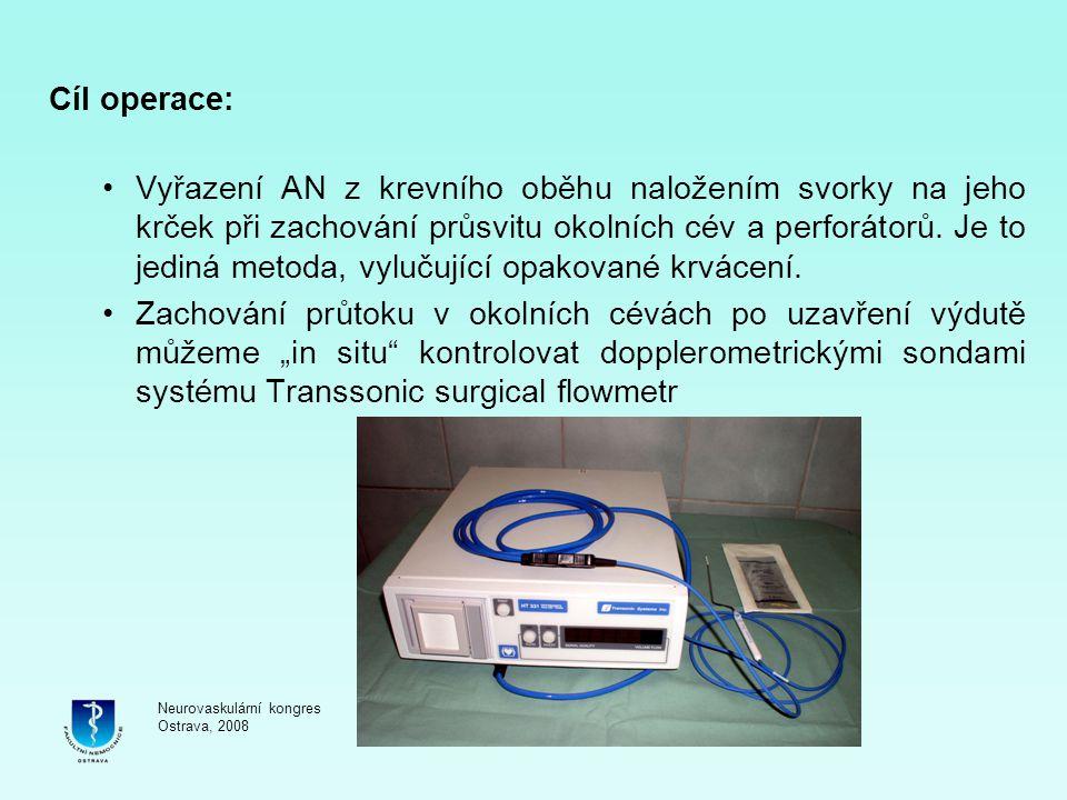 Cíl operace: Vyřazení AN z krevního oběhu naložením svorky na jeho krček při zachování průsvitu okolních cév a perforátorů. Je to jediná metoda, vyluč
