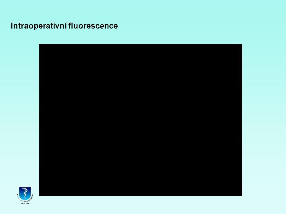 Intraoperativní fluorescence