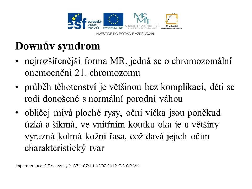 Downův syndrom nejrozšířenější forma MR, jedná se o chromozomální onemocnění 21. chromozomu průběh těhotenství je většinou bez komplikací, děti se rod