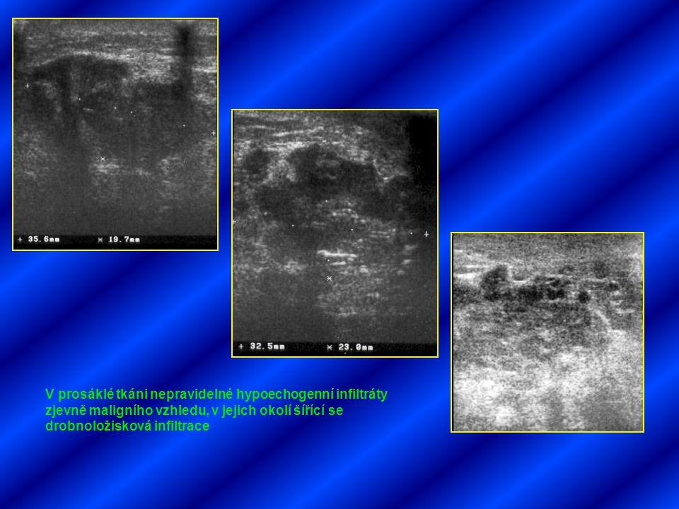 V prosáklé tkáni nepravidelné hypoechogenní infiltráty zjevně maligního vzhledu, v jejich okolí šířící se drobnoložisková infiltrace