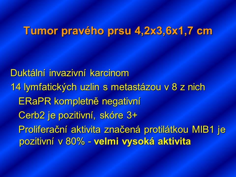 Tumor pravého prsu 4,2x3,6x1,7 cm Duktální invazivní karcinom 14 lymfatických uzlin s metastázou v 8 z nich ERaPR kompletně negativní ERaPR kompletně negativní Cerb2 je pozitivní, skóre 3+ Cerb2 je pozitivní, skóre 3+ Proliferační aktivita značená protilátkou MIB1 je pozitivní v 80% - velmi vysoká aktivita Proliferační aktivita značená protilátkou MIB1 je pozitivní v 80% - velmi vysoká aktivita