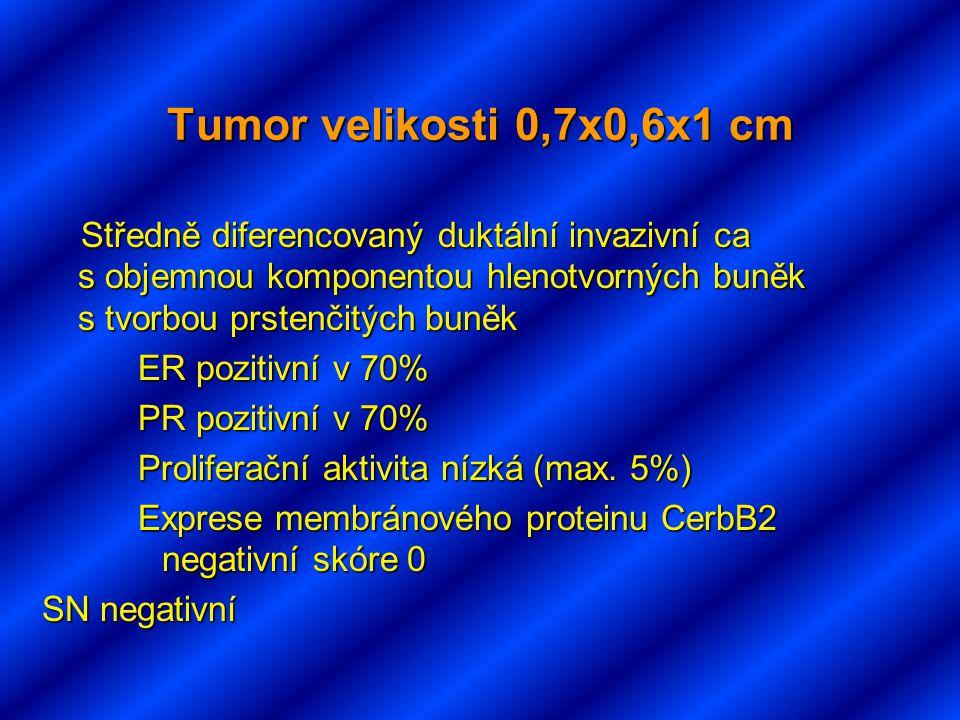 Tumor velikosti 0,7x0,6x1 cm Středně diferencovaný duktální invazivní ca s objemnou komponentou hlenotvorných buněk s tvorbou prstenčitých buněk Středně diferencovaný duktální invazivní ca s objemnou komponentou hlenotvorných buněk s tvorbou prstenčitých buněk ER pozitivní v 70% PR pozitivní v 70% Proliferační aktivita nízká (max.