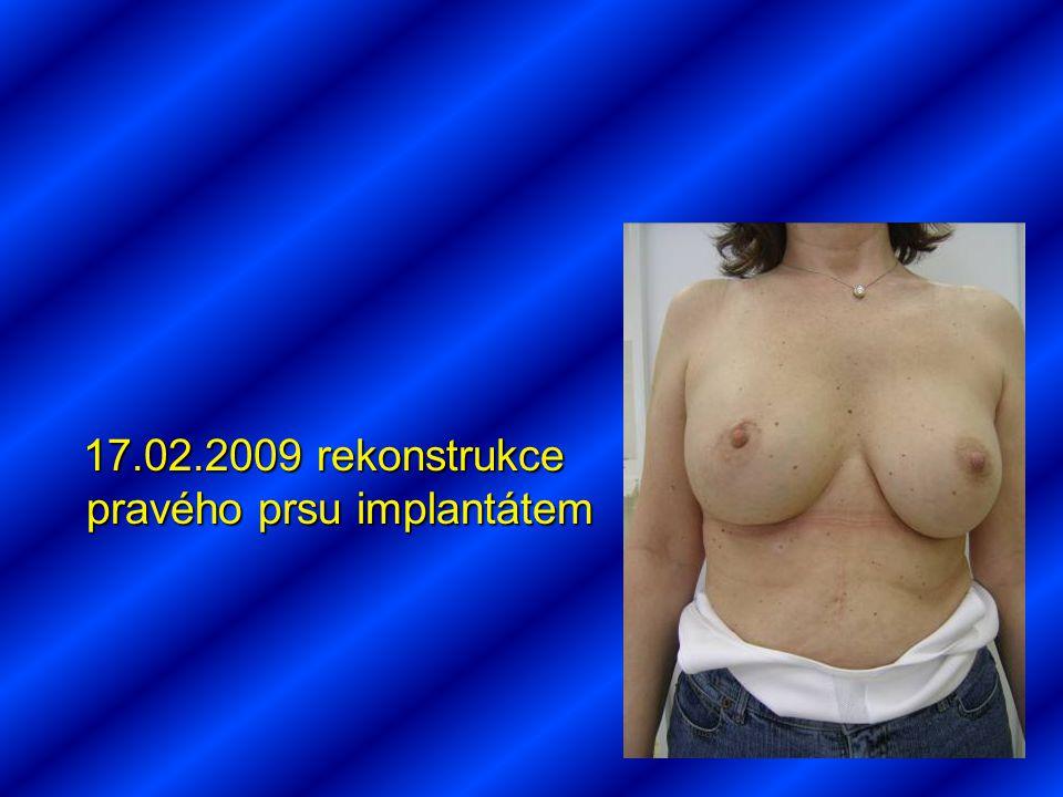 17.02.2009 rekonstrukce pravého prsu implantátem 17.02.2009 rekonstrukce pravého prsu implantátem