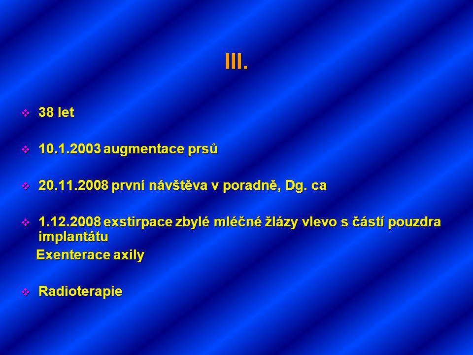 III.  38 let  10.1.2003 augmentace prsů  20.11.2008 první návštěva v poradně, Dg. ca  1.12.2008 exstirpace zbylé mléčné žlázy vlevo s částí pouzdr