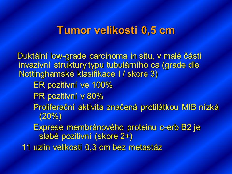 Tumor velikosti 0,5 cm Duktální low-grade carcinoma in situ, v malé části invazivní struktury typu tubulárního ca (grade dle Nottinghamské klasifikace I / skore 3) Duktální low-grade carcinoma in situ, v malé části invazivní struktury typu tubulárního ca (grade dle Nottinghamské klasifikace I / skore 3) ER pozitivní ve 100% PR pozitivní v 80% Proliferační aktivita značená protilátkou MIB nízká (20%) Exprese membránového proteinu c-erb B2 je slabě pozitivní (skore 2+) 11 uzlin velikosti 0,3 cm bez metastáz