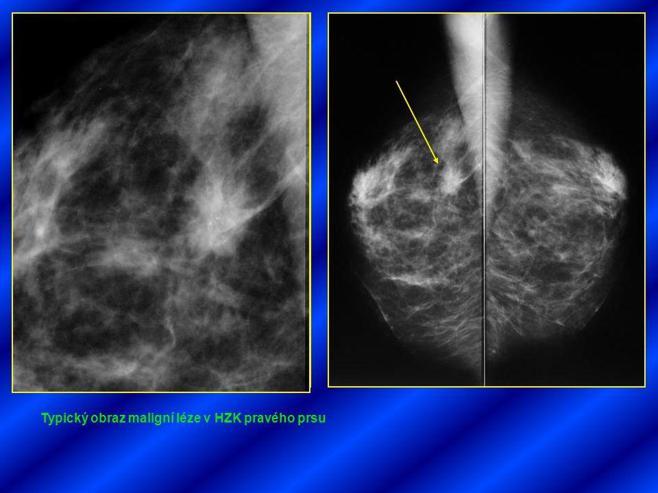 Typický obraz maligní léze v HZK pravého prsu