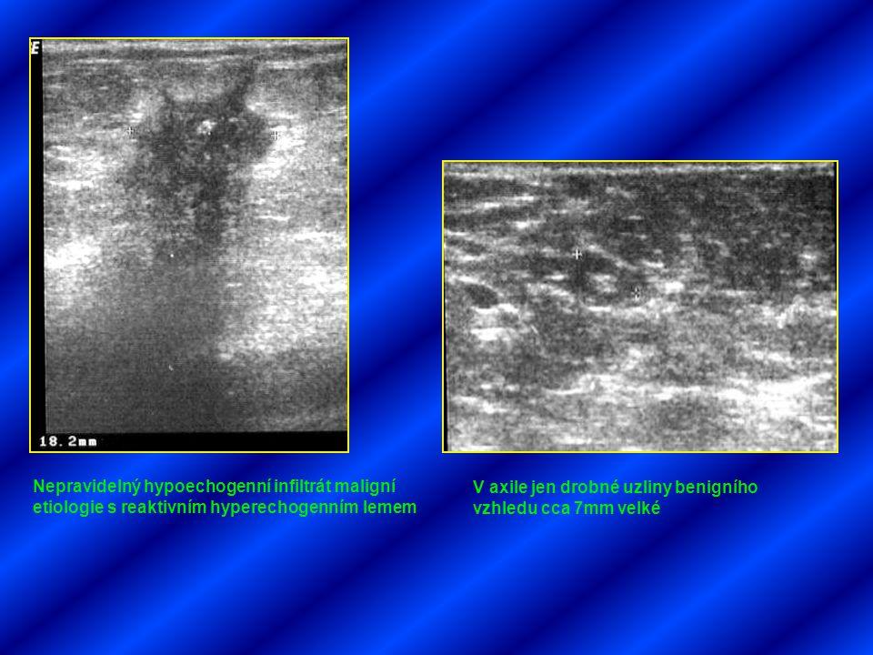 Nepravidelný hypoechogenní infiltrát maligní etiologie s reaktivním hyperechogenním lemem V axile jen drobné uzliny benigního vzhledu cca 7mm velké