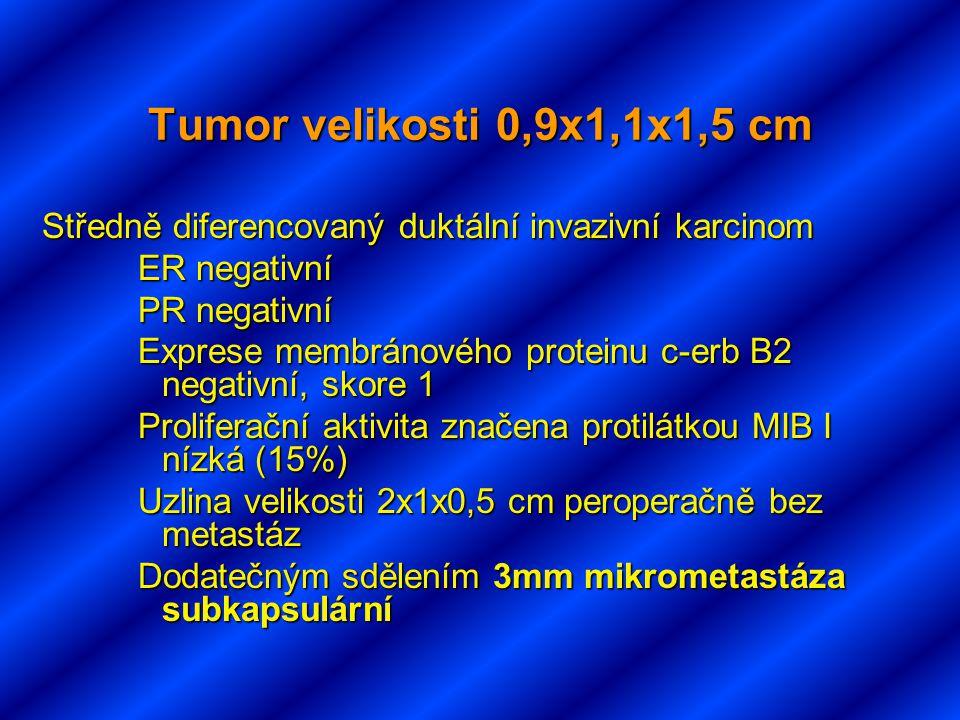 Tumor velikosti 0,9x1,1x1,5 cm Středně diferencovaný duktální invazivní karcinom ER negativní PR negativní Exprese membránového proteinu c-erb B2 negativní, skore 1 Proliferační aktivita značena protilátkou MIB I nízká (15%) Uzlina velikosti 2x1x0,5 cm peroperačně bez metastáz Dodatečným sdělením 3mm mikrometastáza subkapsulární