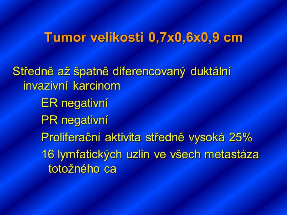 Tumor velikosti 0,7x0,6x0,9 cm Středně až špatně diferencovaný duktální invazivní karcinom ER negativní PR negativní Proliferační aktivita středně vysoká 25% 16 lymfatických uzlin ve všech metastáza totožného ca