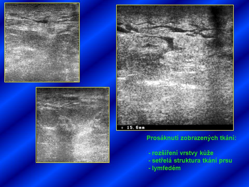 Prosáknutí zobrazených tkání: - rozšíření vrstvy kůže - setřelá struktura tkání prsu - lymfedém