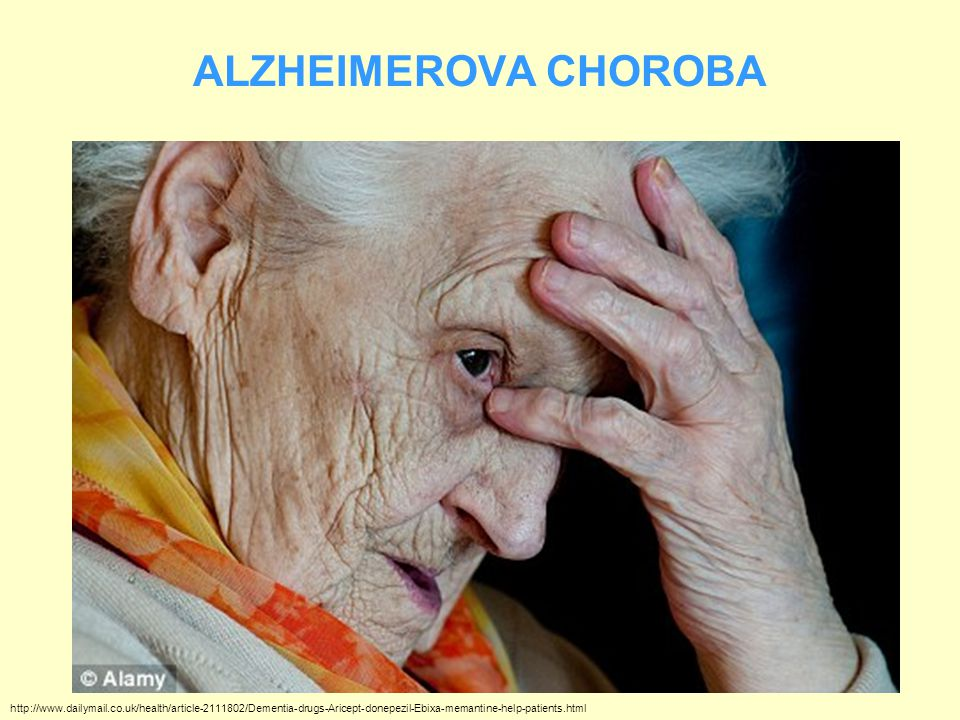 ALZHEIMEROVA CHOROBA http://www.dailymail.co.uk/health/article-2111802/Dementia-drugs-Aricept-donepezil-Ebixa-memantine-help-patients.html