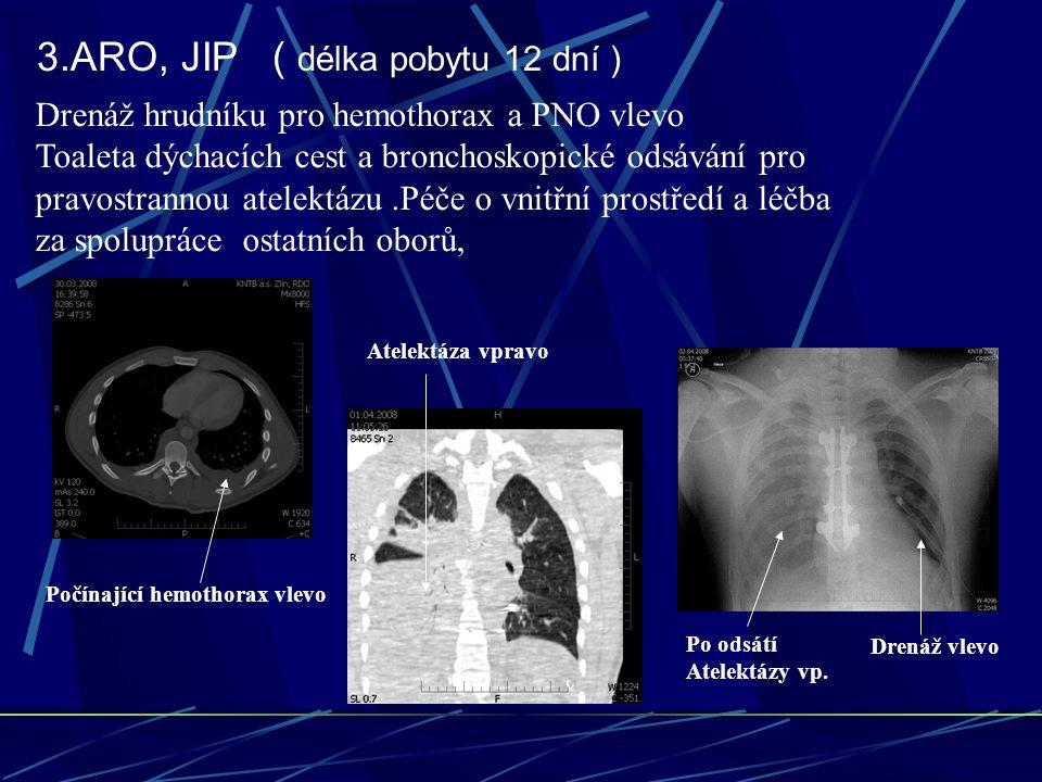 3.ARO, JIP ( délka pobytu 12 dní ) Drenáž hrudníku pro hemothorax a PNO vlevo Toaleta dýchacích cest a bronchoskopické odsávání pro pravostrannou atelektázu.Péče o vnitřní prostředí a léčba za spolupráce ostatních oborů, Počínající hemothorax vlevo Atelektáza vpravo Drenáž vlevo Po odsátí Atelektázy vp.