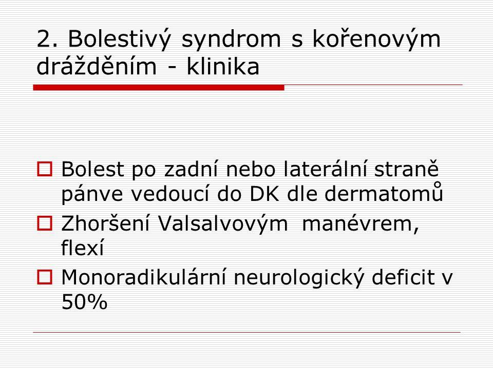 2. Bolestivý syndrom s kořenovým drážděním - klinika  Bolest po zadní nebo laterální straně pánve vedoucí do DK dle dermatomů  Zhoršení Valsalvovým