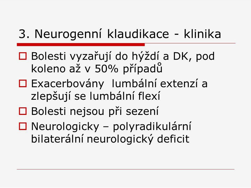 3. Neurogenní klaudikace - klinika  Bolesti vyzařují do hýždí a DK, pod koleno až v 50% případů  Exacerbovány lumbální extenzí a zlepšují se lumbáln