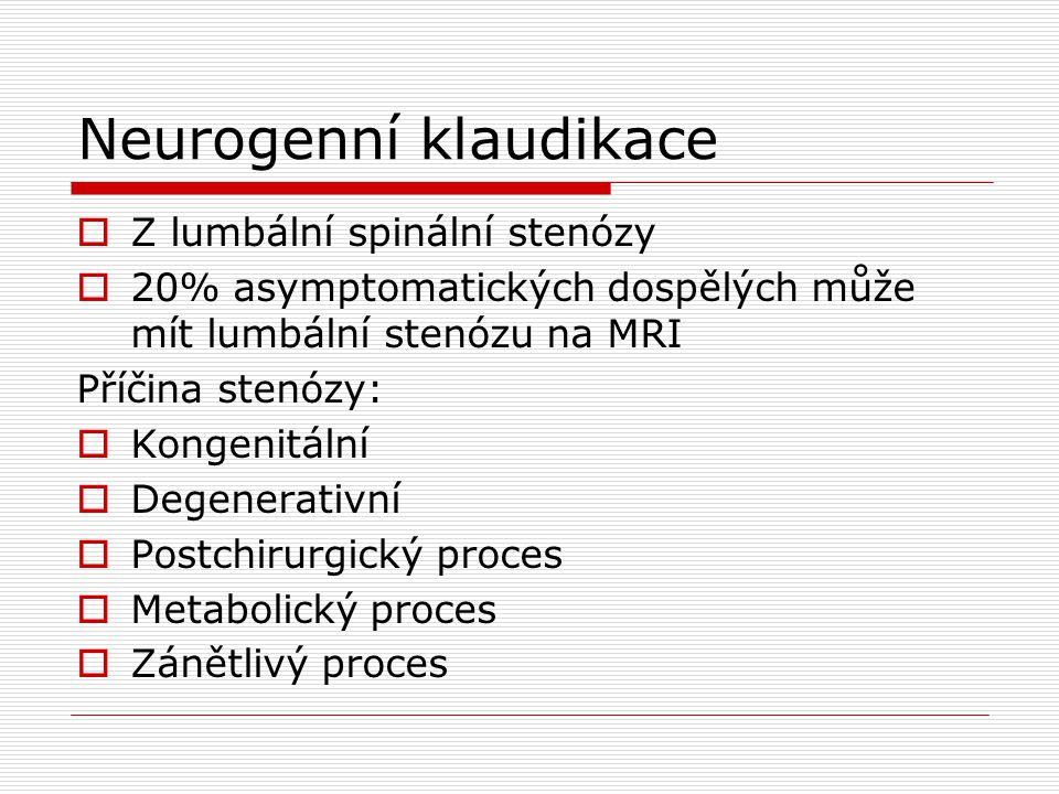 Neurogenní klaudikace  Z lumbální spinální stenózy  20% asymptomatických dospělých může mít lumbální stenózu na MRI Příčina stenózy:  Kongenitální