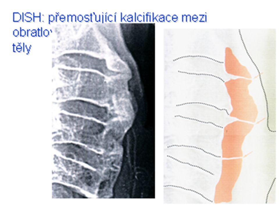 Low back pain - klasifikace  Lumbago  Bolestivý syndrom s kořenovým drážděním (sciatiaca)  Neurogenní klaudikace  Chronický low back pain  Kostní bolest  Zánětlivá křížová bolest  Failed back surgery syndrome FBSS
